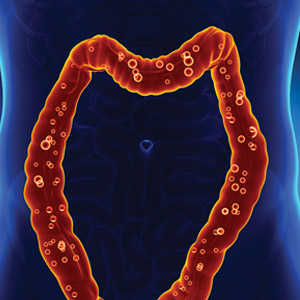 Colon Cancer: Why Screening is Important